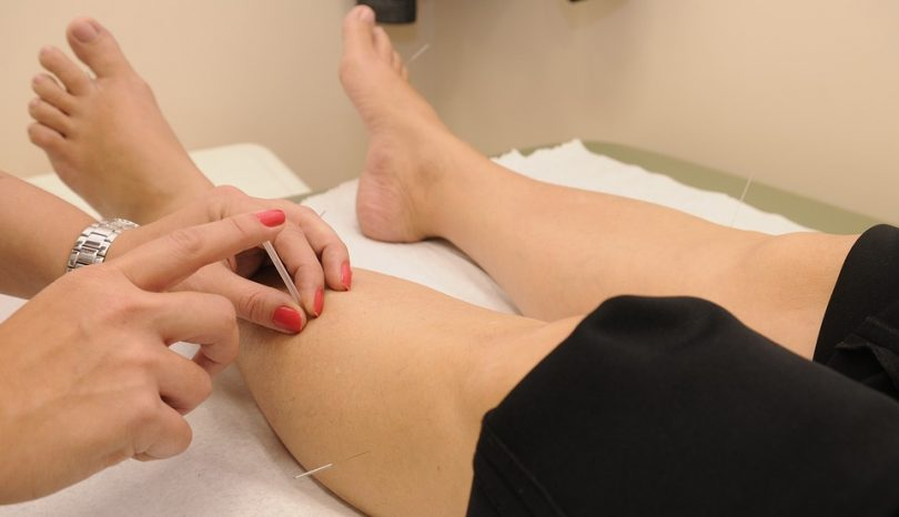 Can Acupuncture Boost Infertility?