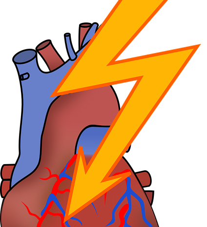 Why You Should Have A Heart Attack Risk Assessment