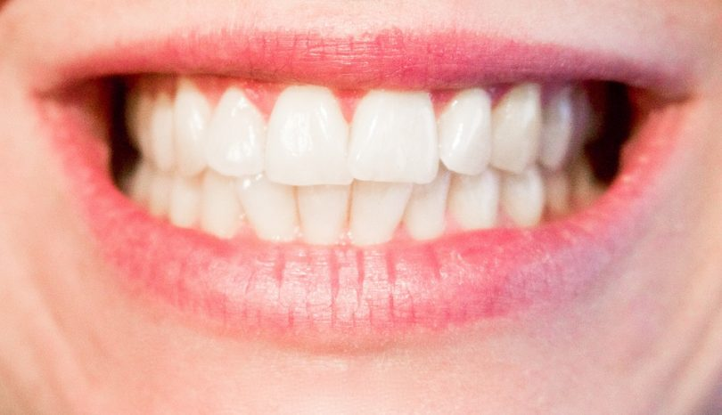 Partial Dentures Brisbane North
