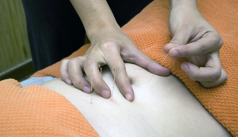 Top Acupuncture Trends You Need To Know In Calgary